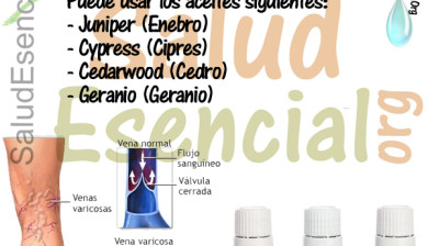 Varices Young Living